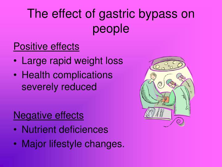 The effect of gastric bypass on people