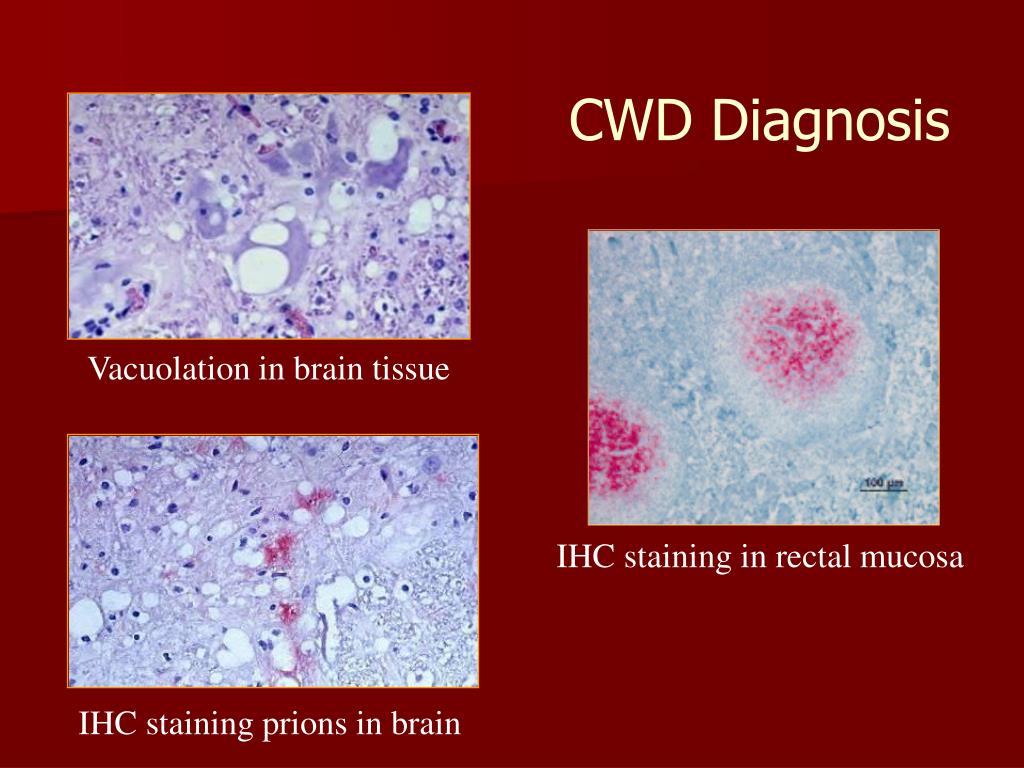 CWD Diagnosis