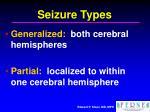 seizure types