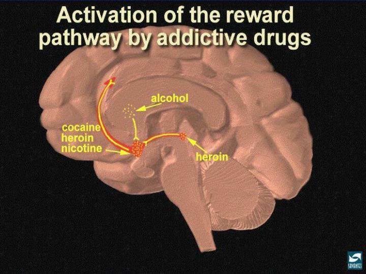 Addiction Brain