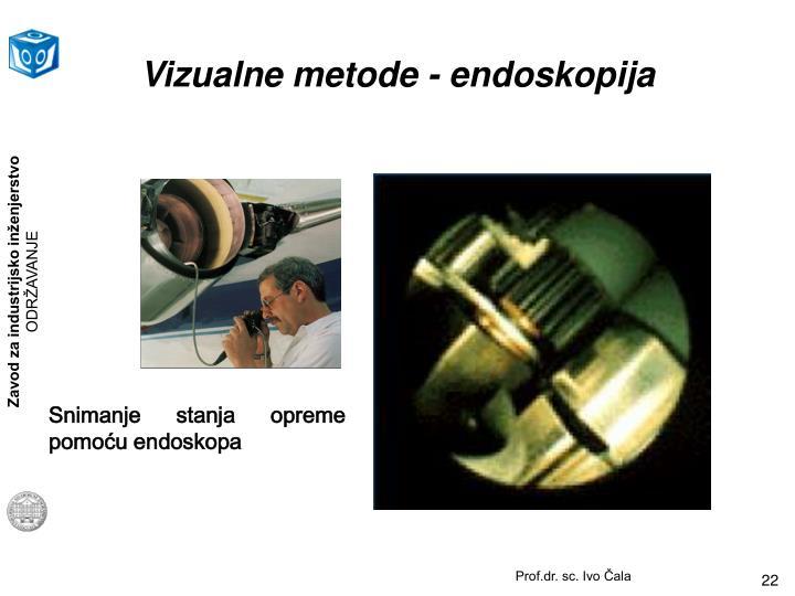 Vizualne metode - endoskopija