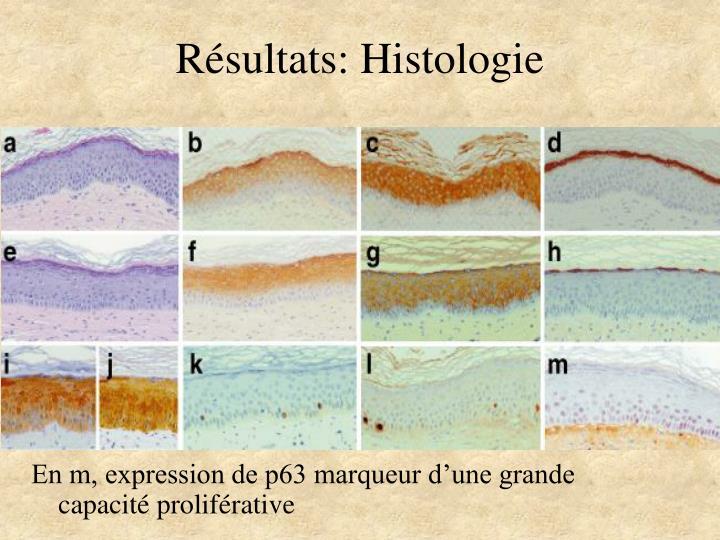 Résultats: Histologie