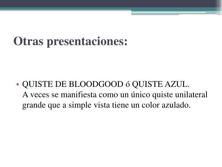 Otras presentaciones
