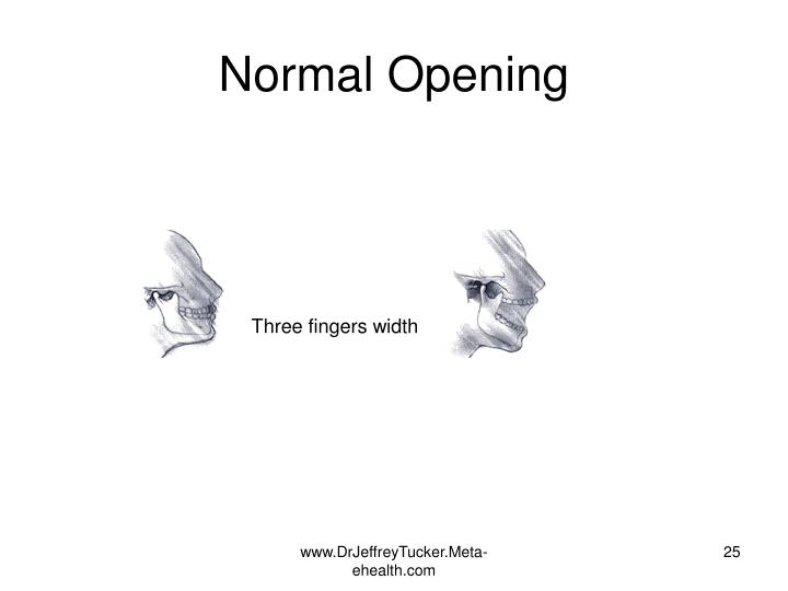 Normal Opening