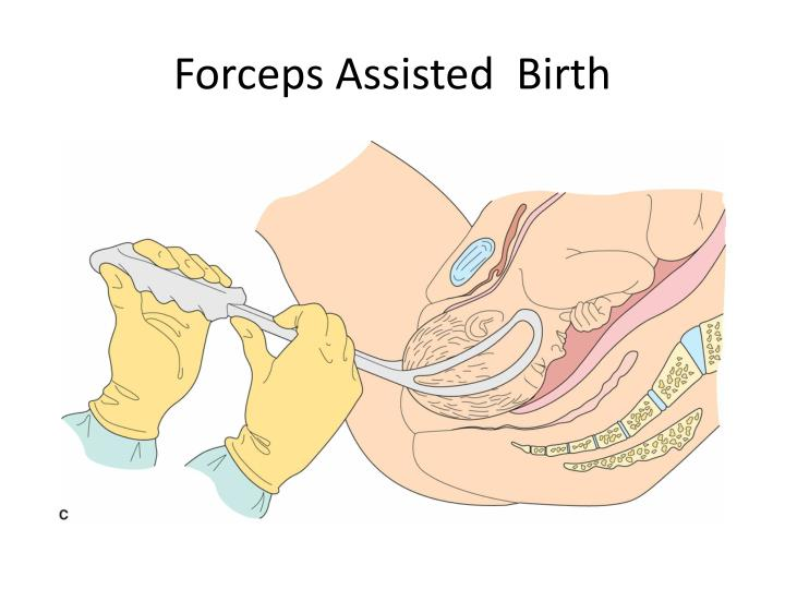 Forceps Assisted  Birth