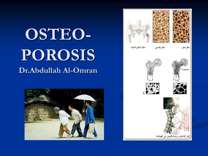 Osteo porosis dr abdullah al omran