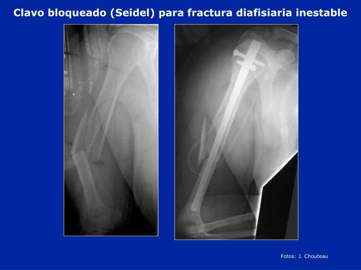 Clavo bloqueado (Seidel) para fractura diafisiaria inestable