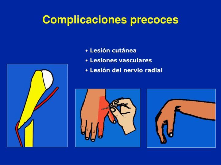 Complicaciones precoces
