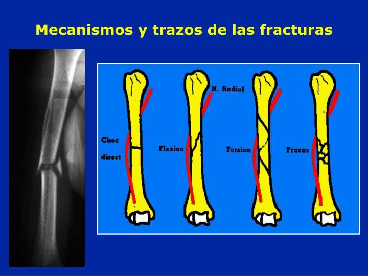 Mecanismos y trazos de las fracturas