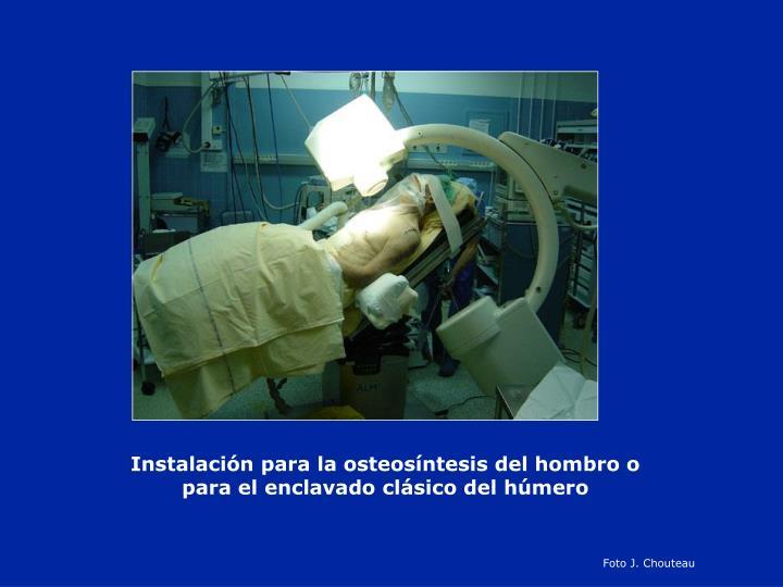 Instalación para la osteosíntesis del hombro o para el enclavado clásico del húmero