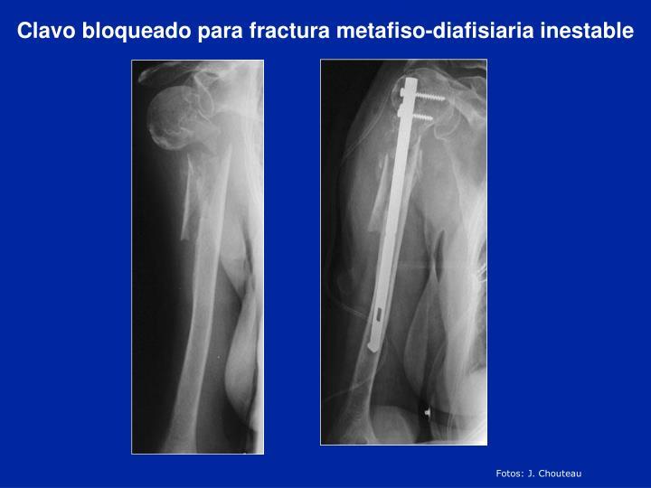 Clavo bloqueado para fractura metafiso-diafisiaria inestable