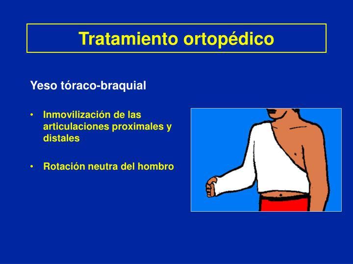 Tratamiento ortopédico