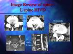 image review of spine l spine hivd1