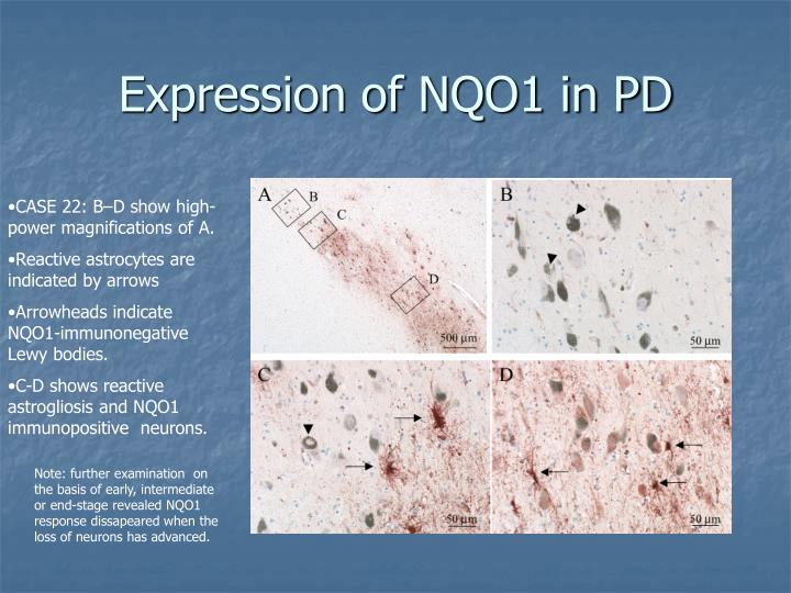 Expression of NQO1 in PD