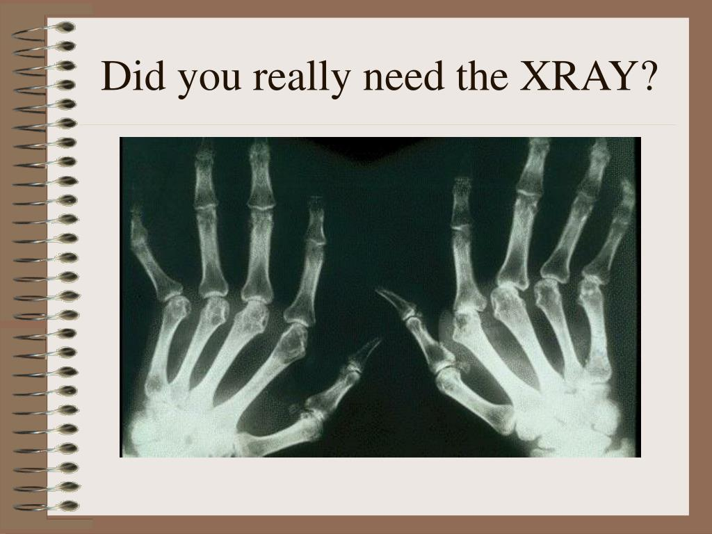 Did you really need the XRAY?