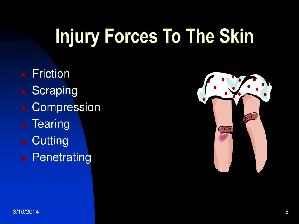 Injury Forces To The Skin