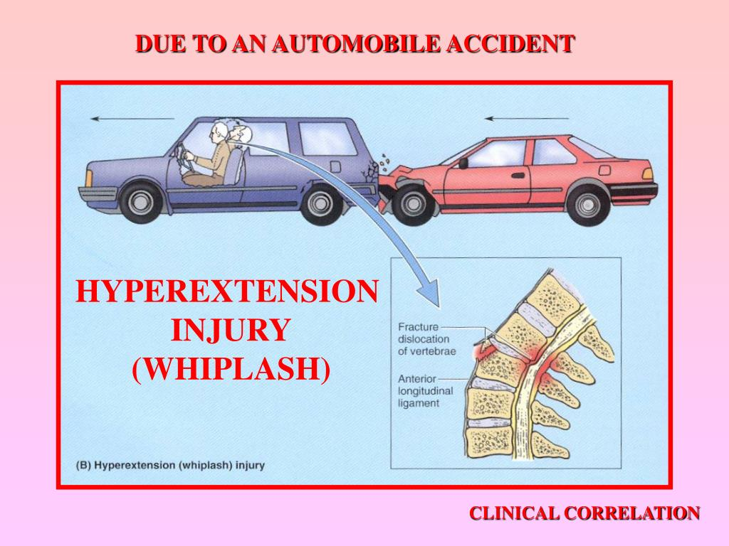 DUE TO AN AUTOMOBILE ACCIDENT