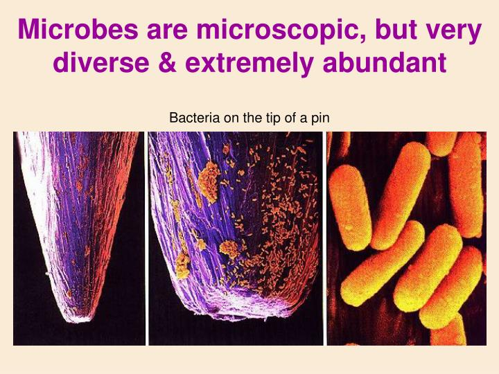Microbes are microscopic, but very diverse & extremely abundant