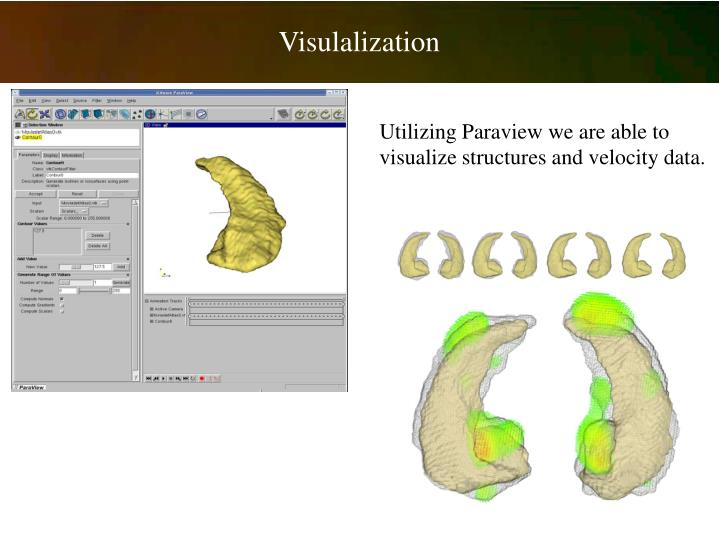 Visulalization