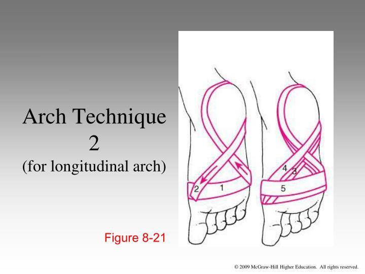Arch Technique 2