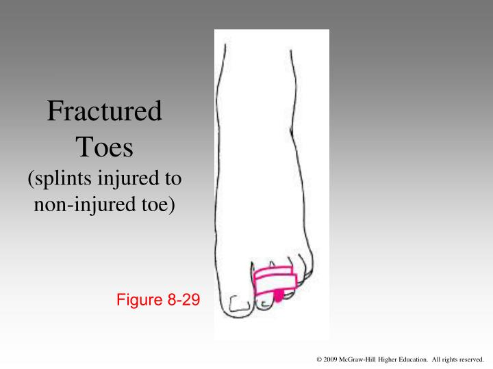 Fractured Toes