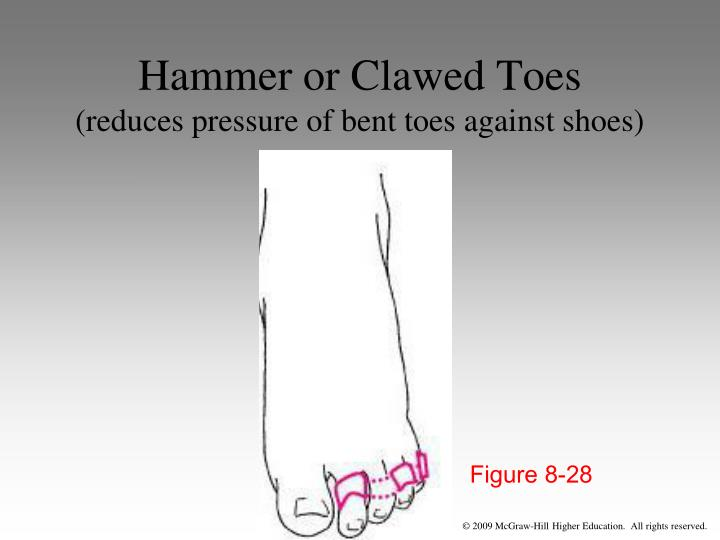 Hammer or Clawed Toes