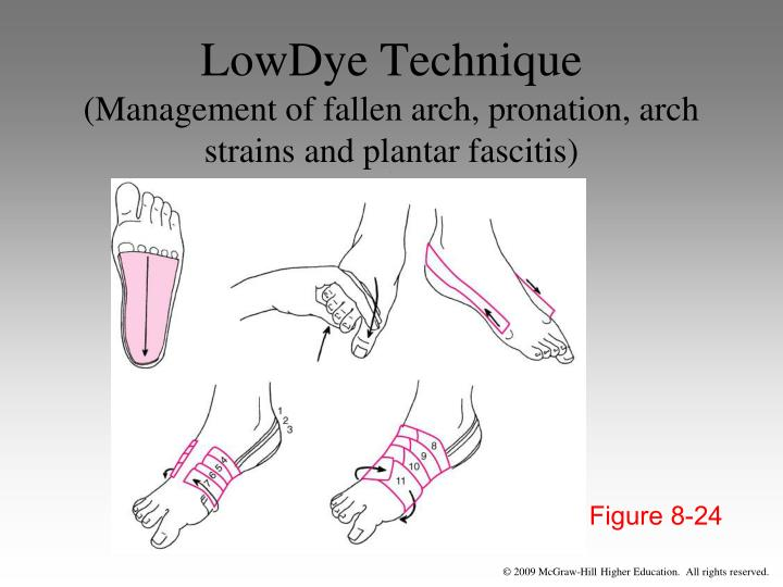 LowDye Technique