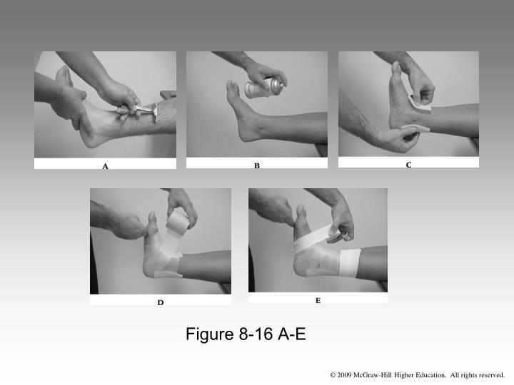 Figure 8-16 A-E