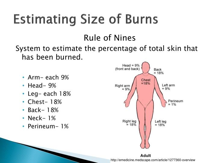 PPT - Medical Nutrition Therapy For Burn Patients ...