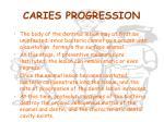 caries progression1