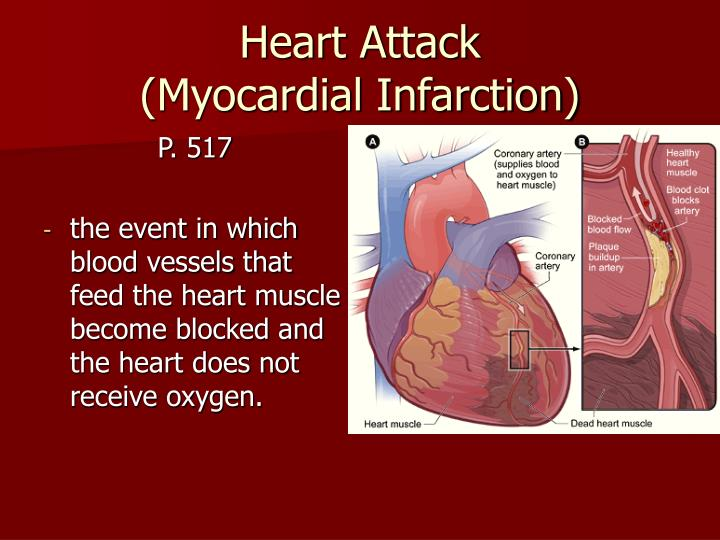 the different causes of myocardial infarction