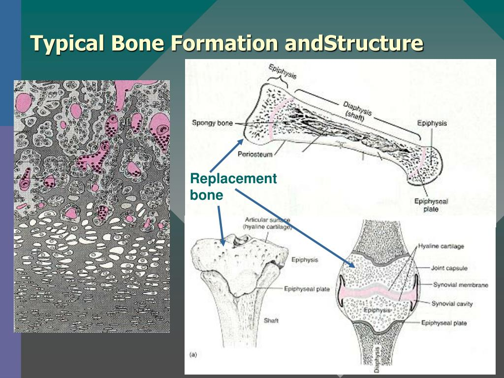 Typical Bone Formation andStructure