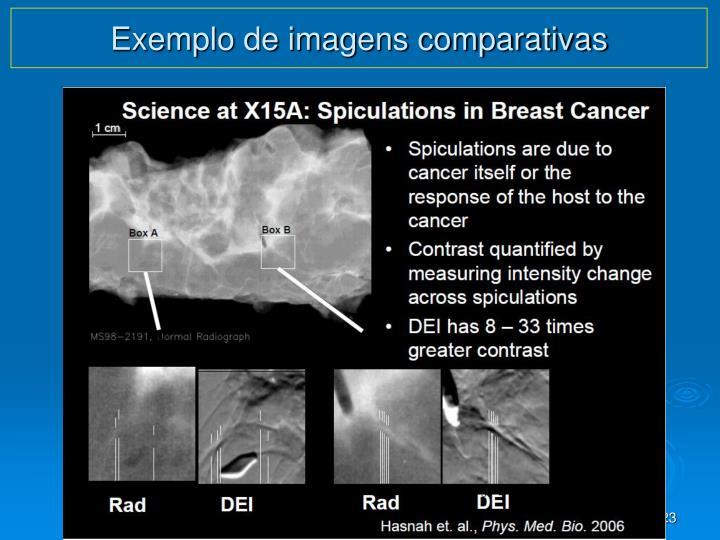 Exemplo de imagens comparativas