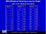 mild bilateral hearing loss by state 28 of all bilateral were mild