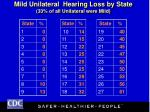 mild unilateral hearing loss by state 33 of all unilateral were mild