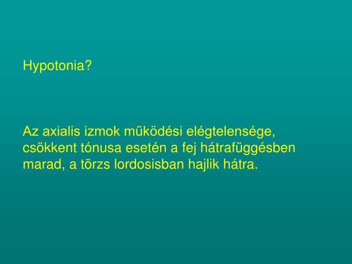 Hypotonia?