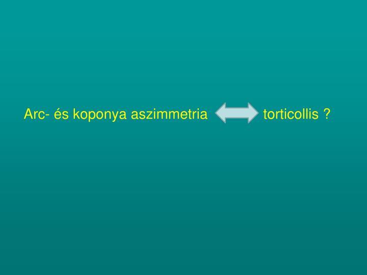 Arc- és koponya aszimmetria              torticollis ?