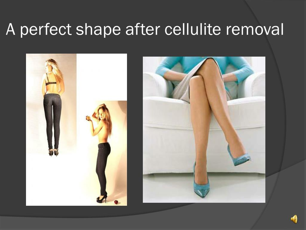 A perfect shape after cellulite removal