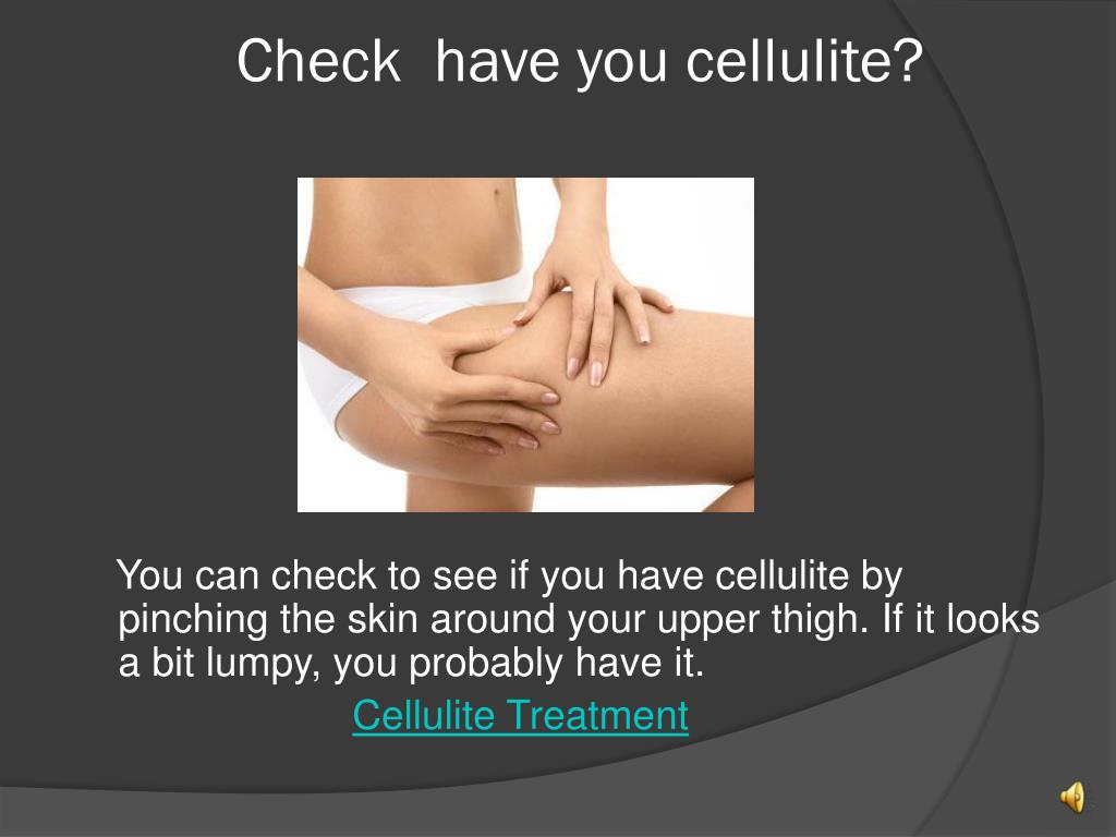 Check  have you cellulite