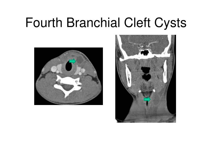 Fourth Branchial Cleft Cysts