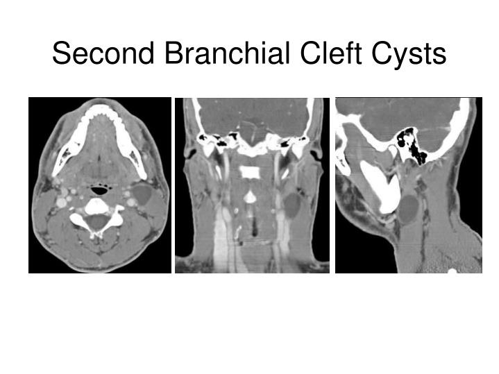 Second Branchial Cleft Cysts