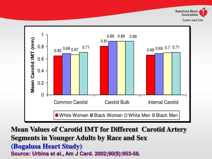 Mean Values of Carotid IMT for Different  Carotid Artery Segments in Younger Adults by Race and Sex