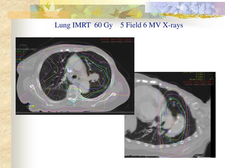 Lung IMRT  60 Gy    5 Field 6 MV X-rays