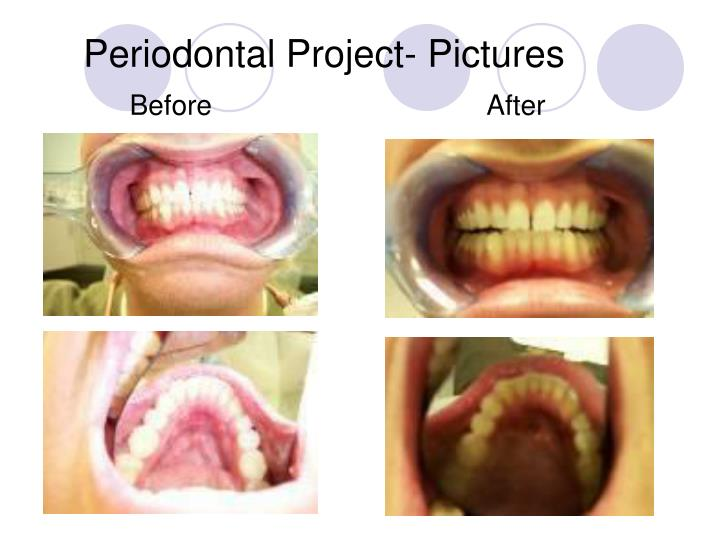 Periodontal Project- Pictures