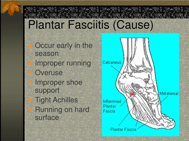 Plantar Fasciitis (Cause)