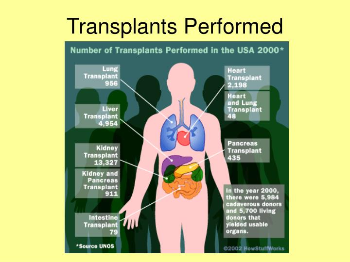 Transplants performed