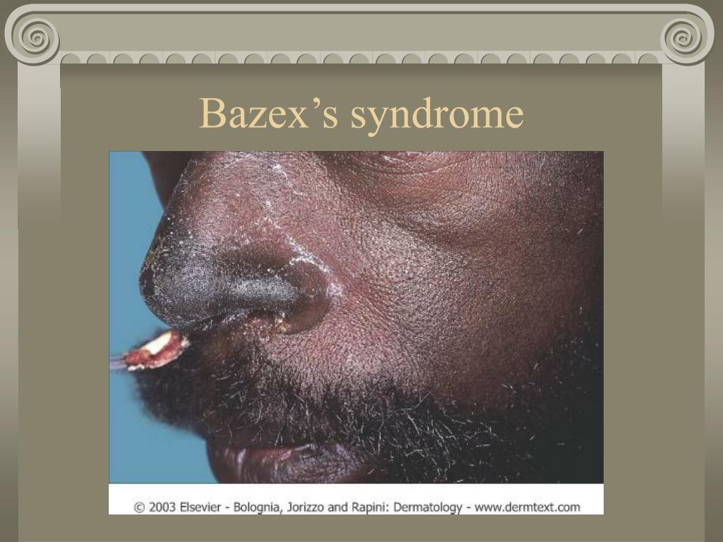 Bazex's syndrome