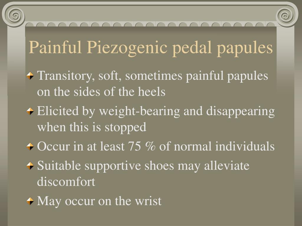 Painful Piezogenic pedal papules