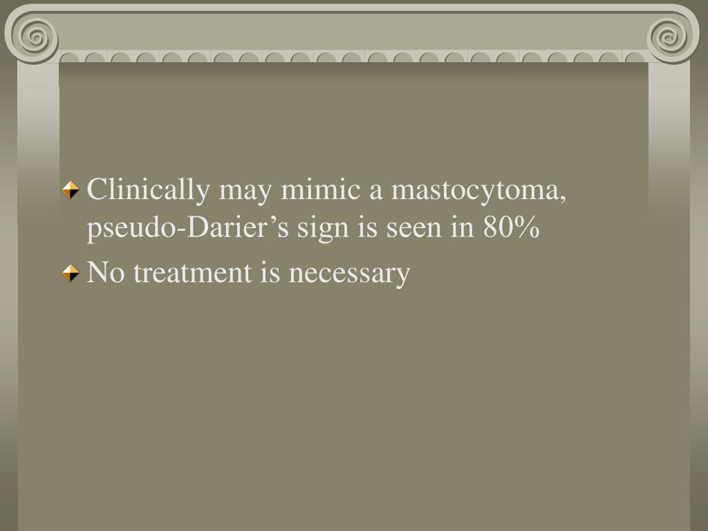 Clinically may mimic a mastocytoma, pseudo-Darier's sign is seen in 80%