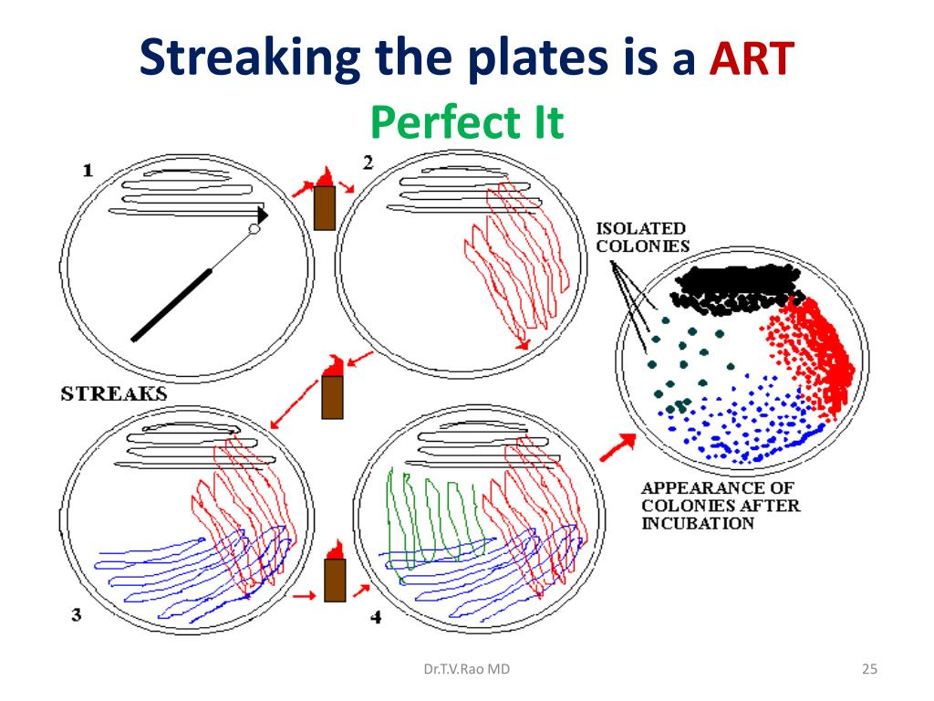 Streaking the plates is